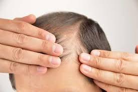 going bald or facing hair fall 14