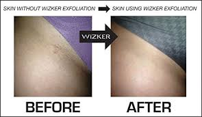 amazon original ingrown hair brush by wizker exfoliating face neck underarms legs firm flex bristles eliminates prevents razor ps
