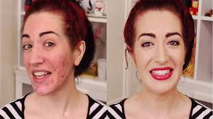 how to cover acne scars easy makeup transformation for pimples scars 8