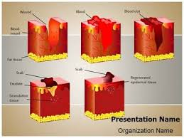 Dermatology Wound Healing Powerpoint Template Is One Of The