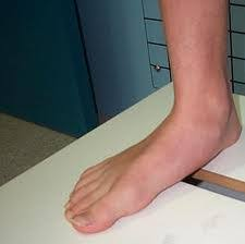 Flat Footed Flat Feet Fallen Arches Natural Flat Feet Treatment Prevention