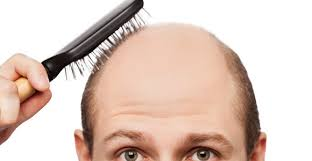 losing your hair it may be your iron