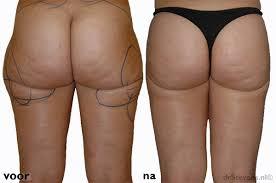 Liposuctie benen - voor slanke dijbenen bovenbenen