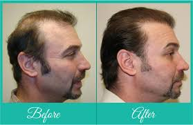 Male Pattern Baldness Cure Extraordinary Hair Loss Baldness Causes Treatement Hair Loss Reasons Hair