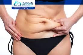 maximum bmi for liposuction maximum