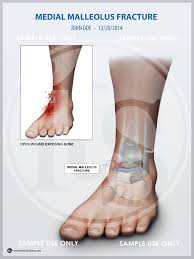 Ankle Fracture Medial Malleolus Fracture Infomedia Trial