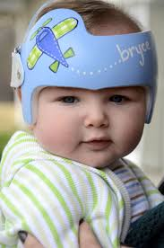 Doc Band Designs Pin By Leigh Gibson On Cranial Bands Helmets Baby Helmet