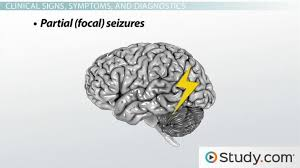 Epilepsy Causes Types And Treatments