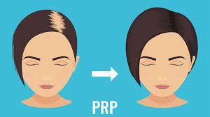 10 causes of hair loss hair loss