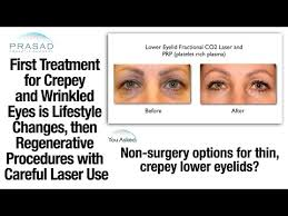 treating crepey under eyelid skin with platelet rich plasma and fractional co2 laser you