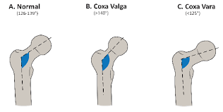 Coxa Vara Femoral Osteotomy An Overview