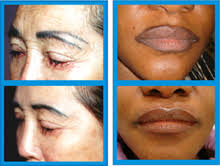 for correction of permanent makeup eyebrows or lipliners for removal of body tattoos it may take