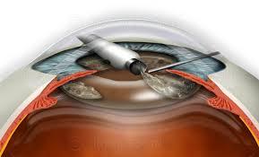 Phacoemulsification Suca0020 Stock Eye Images