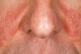 Schilfers rond neus