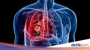 Tentu kita sadari setiap hari, sebagai manusia, kita selalu mengeluarkan sisa metabolisme dalam bentuk cairan. 6 Organ Pernapasan Manusia Lengkap Beserta Fungsinya