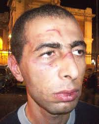 Egyptian Police drag, kick and punch university lecturer for attending Khaled Said's stand at the court - Mohamed-Tariq