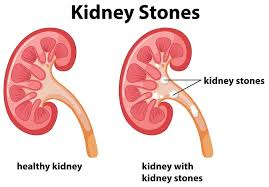 What You Need To Know About Diabetes Gallstones And Kidney