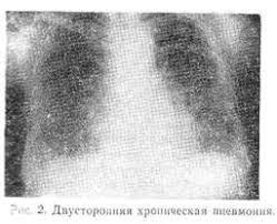 Реферат Пневмония диагностика и лечение ru Течение хронической пневмонии разнообразно В одних случаях заболевание прогрессирует медленно обострения наблюдаются сравнительно редко и не сопровождаются