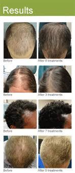 Male Or Female Pattern Baldness Treatments Cool PRP Hair Restoration Los Angeles David Ghozland