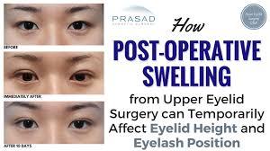Asian eyelid surgery healing