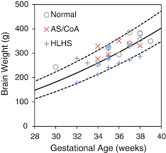 weight group relationship between brain weight and gestational age normal group