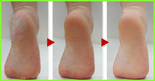 Image result for foot peel before and after