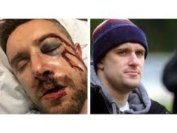 Escalofriante: chocó con el arquero y su cara quedó completamente  desfigurada