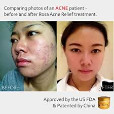 During pregnancy these skin disorders may become aggravated, in rare cases occurring for the first time. Amazon Com Rosaacne Relief Zinc Oxide And Sulfur Ointment Treatment For Facial Acne Rosacea And More Beauty