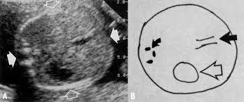 Bpd Fl Ac Hc Chart In Cm Assessment Of Gestational Age By Ultrasound Glowm