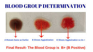 Blood Group Test Different Types Of Blood Group By Solution Pharmacy