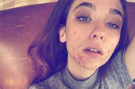 Matilda De Angelis opens up about her acne on Instagram