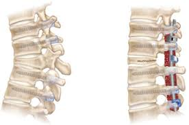 「経皮的椎体形成術と骨セメント」の画像検索結果