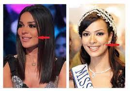 غمازة نادين نجيم فضحت تأثير عمليات التجميل على وجهها... شاهدي صورها قبل  وبعد!
