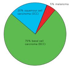 Skin Cancer Chart Skin Cancer Cc By Songkran Ellis Infographic