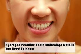 hydrogen peroxide teeth whitening details you need to know
