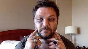 Jenn, bam's mother, april margera, shares a traumatizing story from bam's. Bam Margera Opens Up About His Struggle With Bulimia The Rock Star Life And Drinking Spun Out Of Control Entertainment Tonight