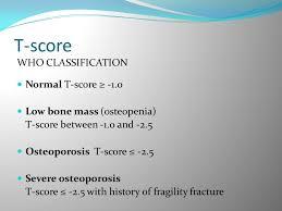 Bone Densitometry Ppt Download