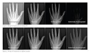 Understanding Radiology Exposure Indicators Everything Rad