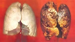 Реферат Заболевания дыхательной системы и их предупреждение  На рисунке 4 показано как выглядят легкие здорового человека а как курильщика