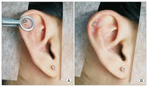 Piercing Of The Ear Using Carbon Dioxide Laser Sciencecentral