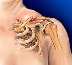 перелом ключицы травма лечение перелома как часто повреждения   как часто повреждения плевры и легких при переломе ключицы у детей реферат