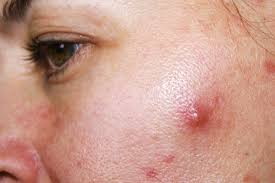 how to get rid of cystic acne sometimes overnight really
