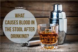Binge drinking and anal bleeding