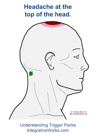 Headache Chart Top Of Head Understanding Trigger Points Headache On The Top Of Your