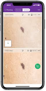 Mole Chart For Skin Cancer Mole Mapping Guide Getting A Mole Map What You Should Know