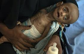 Yemeni girl who turned world's eyes to famine has died | The ...