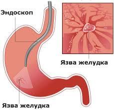Голубой Главным провоцирующим фактором прободения язвенных ран является нарушение диеты и режима питания