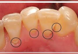 in order to keep them in working condition it is important to brush away the tartar tartar buildup can cause cavities tooth decay and in extreme cases