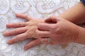 Itchy Skin & Liver Problems | LIVESTRONG.COM