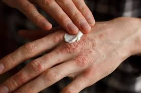 Psoriasis Treatment Topical Treatment And Systemic Treatment